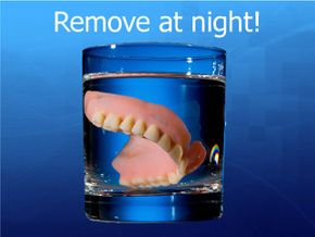 Remove at night! - cell 56
