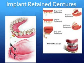 Wright Denture Clinic slide show - cell 36
