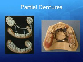 Wright Denture Clinic slide show - cell 17